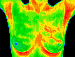 Nyc breast thermal imaging